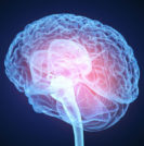 Treating the Brain for Essential Tremor - Sperling Neurosurgery Associates