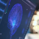 Essential Tremor Research Study - Sperling Neurosurgery Associates